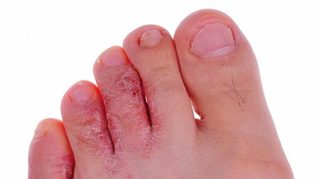 athletes_foot_toe