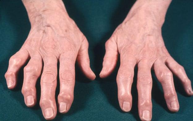 osteo-hands