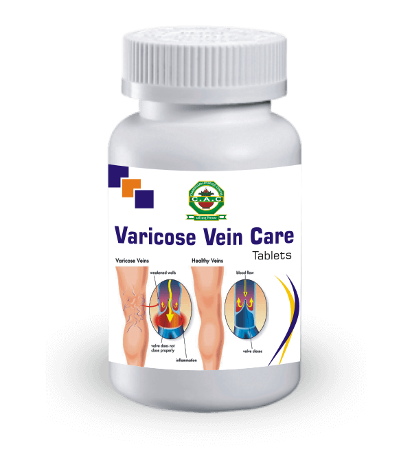 varicose-vein-care-tablet
