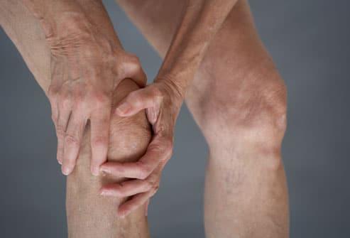 Osteoarthritis-Sandhigat-Vata