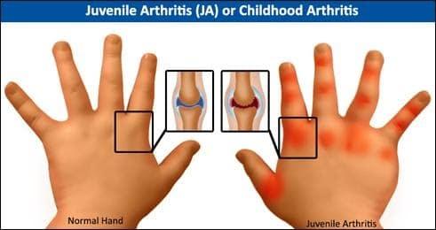AYURVEDIC-MANAGEMENT-OF-JUVENILE-ARTHRITIS