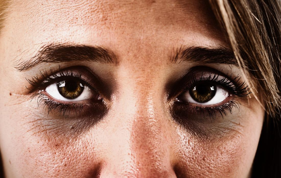 REMEDIES-FOR-DARK-CIRCLES-AND-UNDER-EYE-BAGS