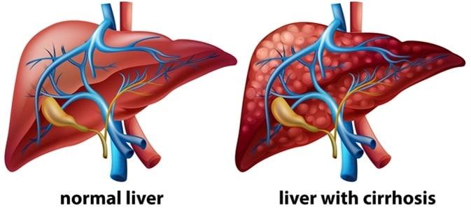 liver cirhosis