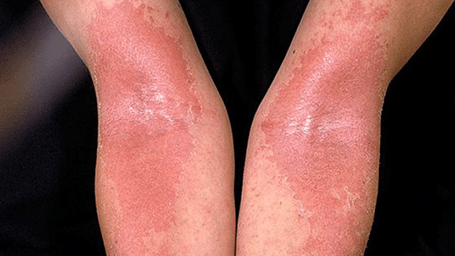 Top 7 Home Remedies For Eczema Treatment