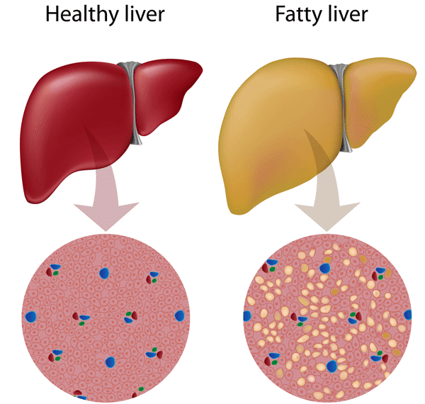 CAN AYURVEDA CURE FATTY LIVER DISEASES ?