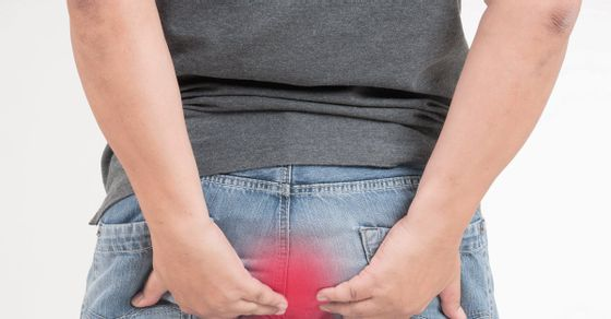 HOW-TO-CURE-ANAL-FISTULA-WITHOUT-SURGERY