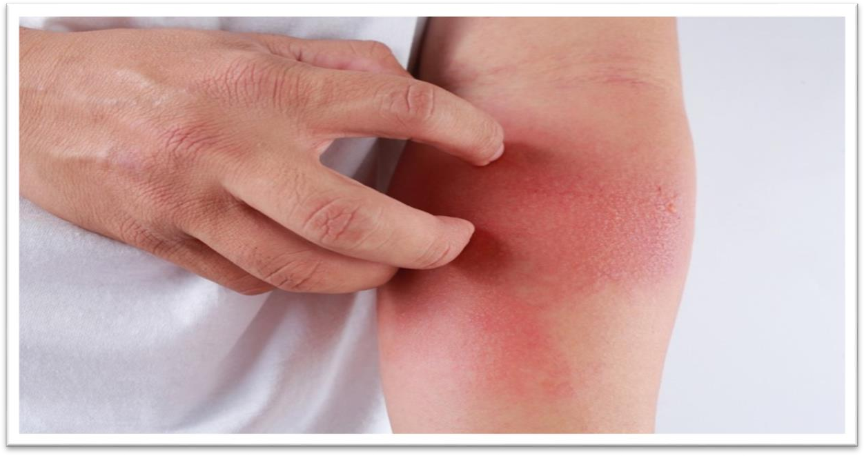 Ayurveda Treatment for Skin Rashes and Itching