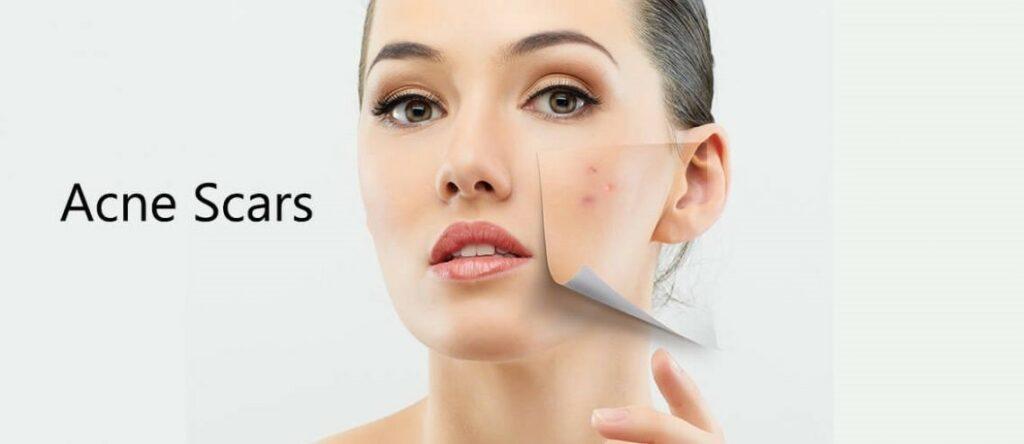 What Is The Best Thing To Use To Get Rid Of Acne Scars?