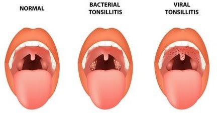 What are the causes of Tonsillitis?
