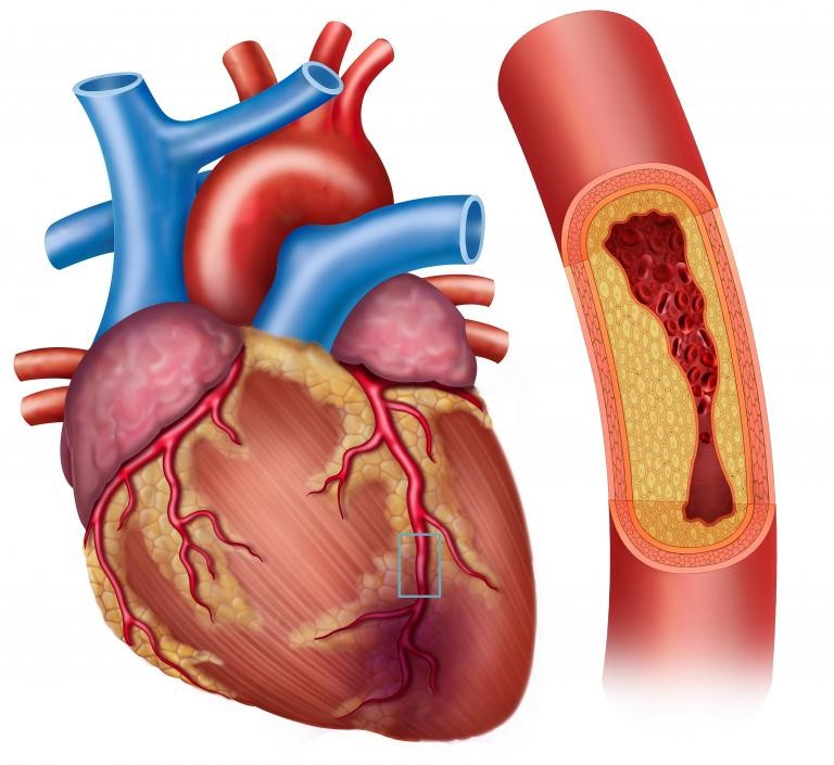 HOME REMEDY TO REDUCE CHOLESTEROL