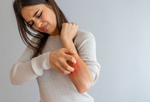 AYURVEDIC TREARMENT FOR SKIN RASHES AND ITCHING