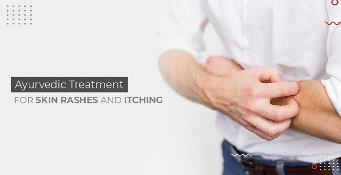 AYURVEDIC TREATMENT FOR SKIN RASHES AND ITCHING